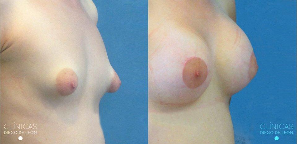 Antes y después aumento de senos | Clínicas Diego de León