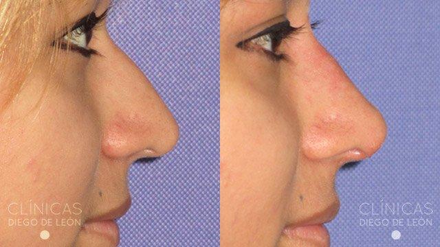 Retoque nariz sin cirugía