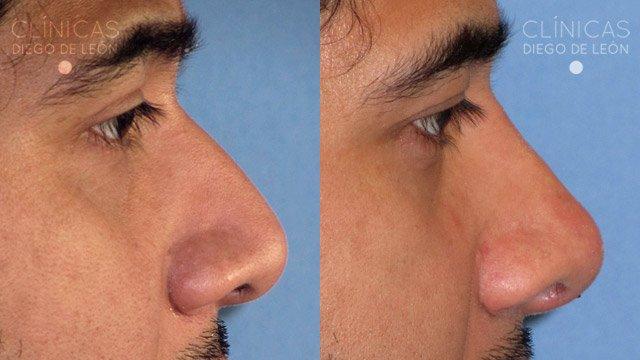 Rinomodelación sin cirugía antes y después