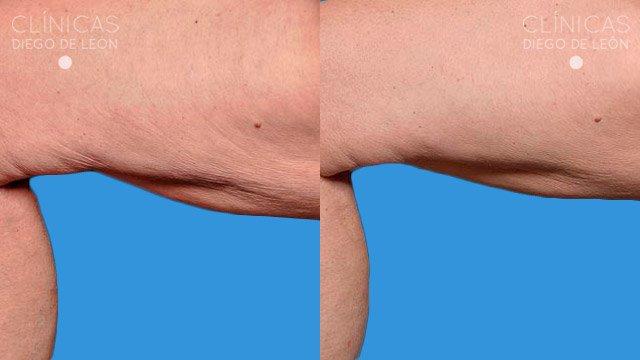 Thermage corporal antes y después