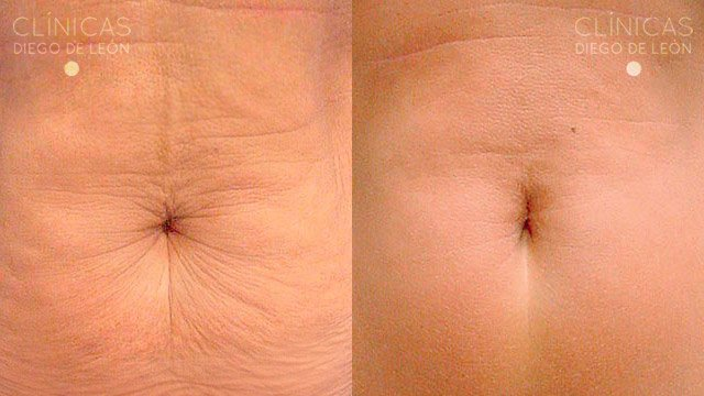 Thermage cpt abdomen