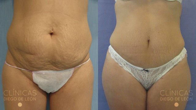 Tratamiento de abdominoplastia