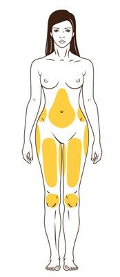 Zonas de liposonix