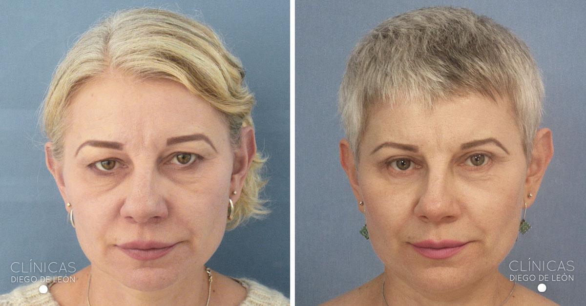 Cirugía de ojos resultados