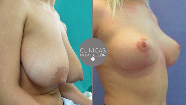 Elevación de pecho, mastopexia con o sin prótesis