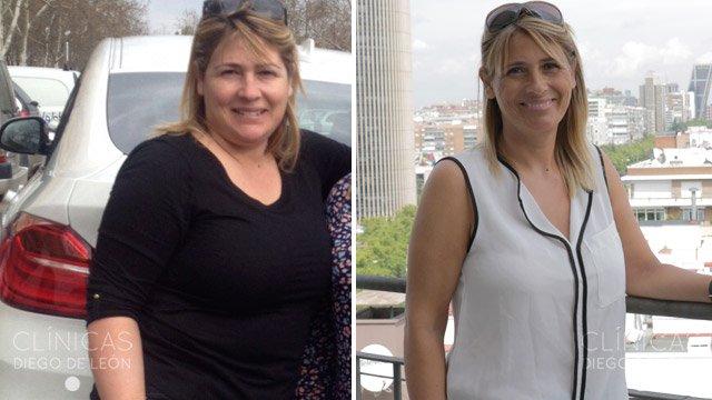 Milagros antes y después