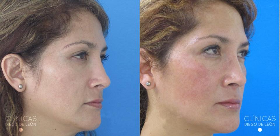 Antes y después eliminar arrugas | Clínicas Diego de León