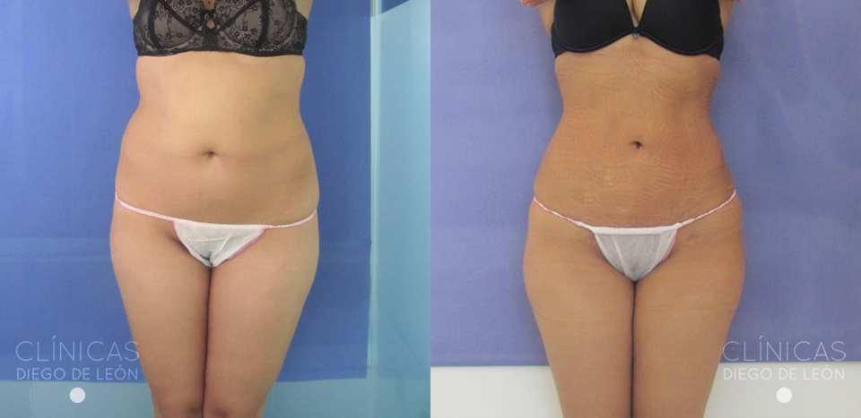 Liposucci n de flancos y abdomen for Muebles restaurados antes y despues