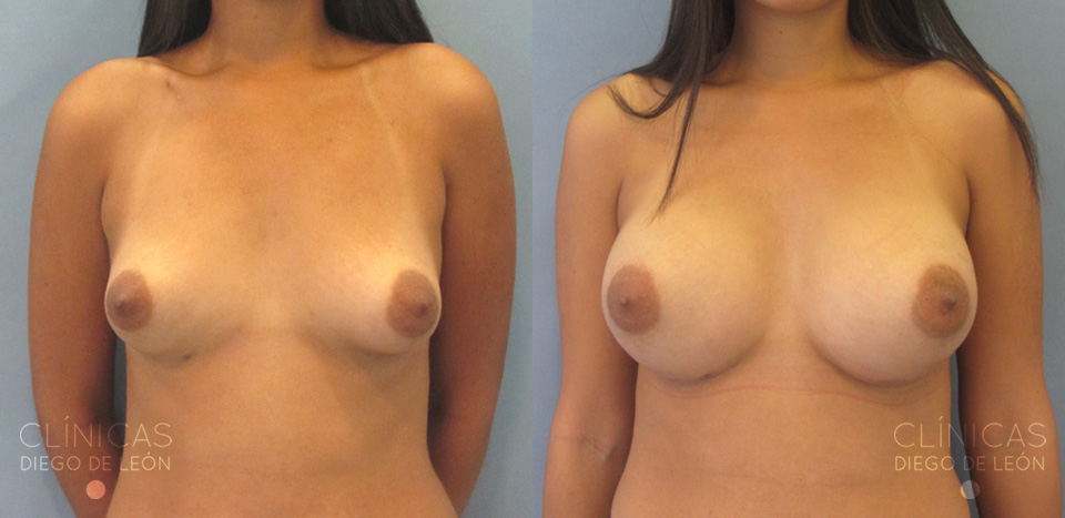 Antes y después Mamas tuberosas