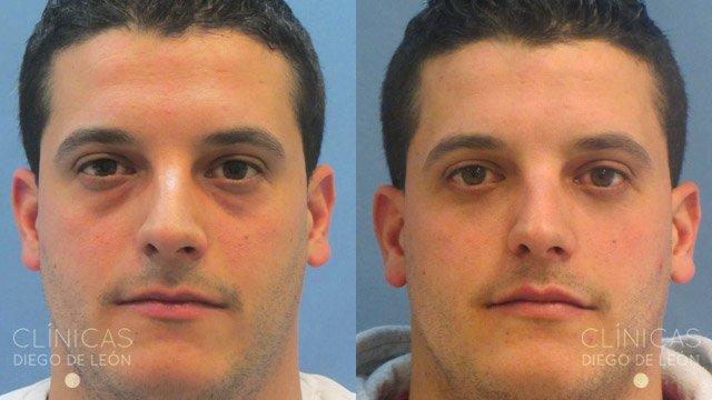 Blefaroplastia inferior antes y después