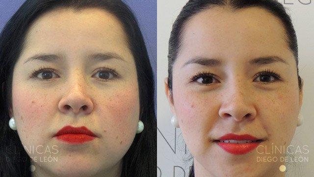 La mujer stasa mihaylova ha adelgazado a 24 kg