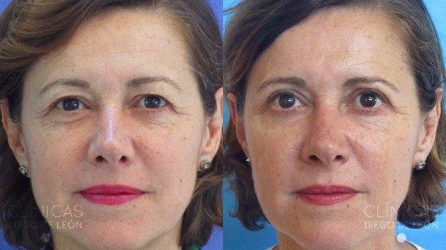 Cirugía de ojos antes y después