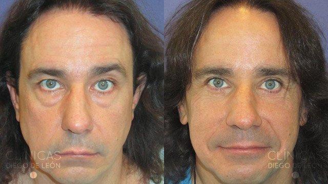 Cirugía de ojos inferior