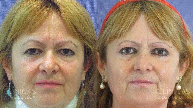 Cirugía de ojos mujer