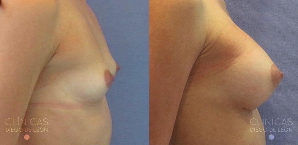 Cirugía de implante de senos