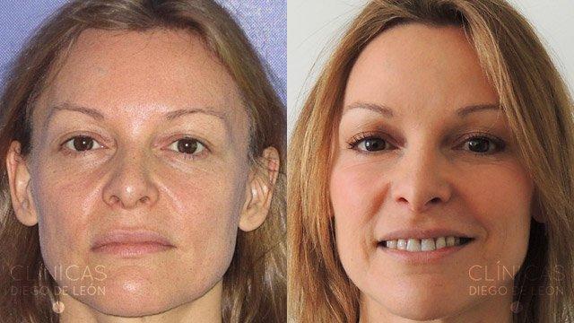 eliminar arrugas antes y después