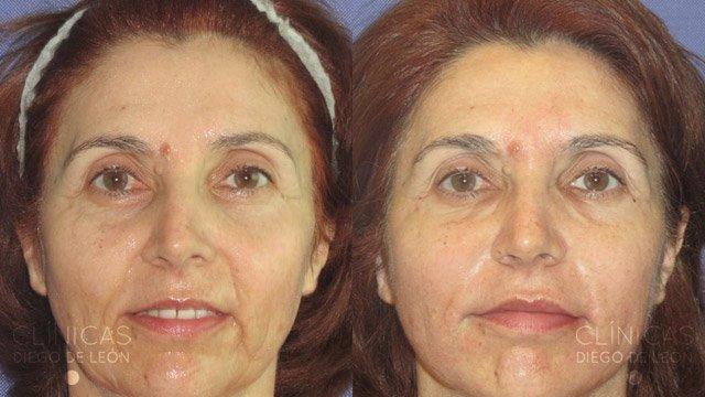 Eliminar arrugas cara