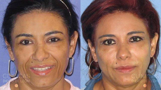Eliminar arrugas rostro
