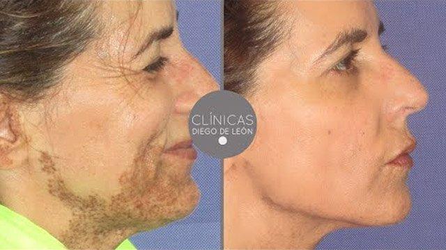Eliminar manchas y marcas de la piel