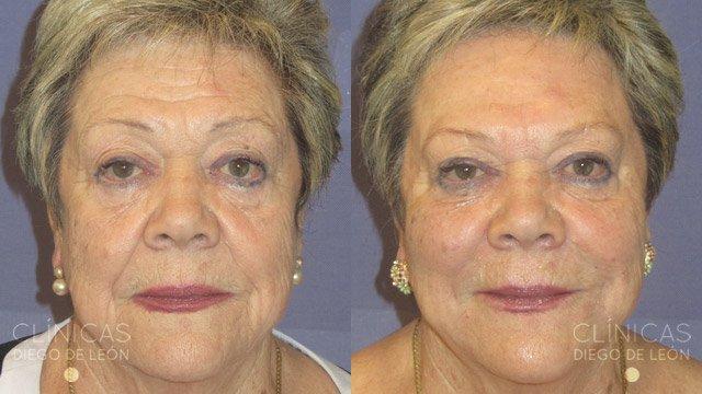 Facial completo antes y después