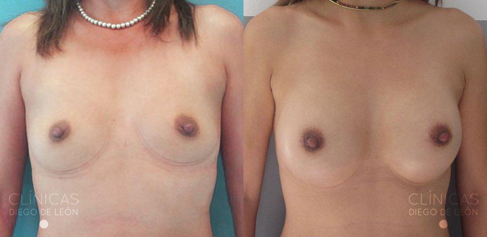 antes y después operación de pecho