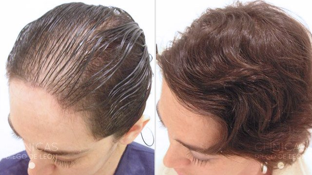 Implantes de pelo mujeres