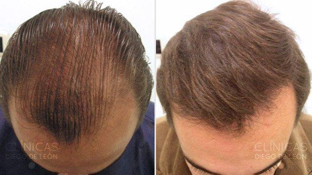 Injertos de pelo antes y después