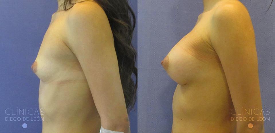 Cirugía de implante de pechos