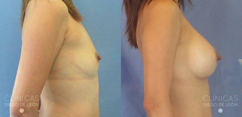 Antes y después operación de pechos