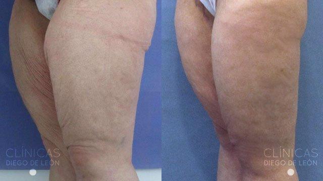 Lifting de piernas antes y después