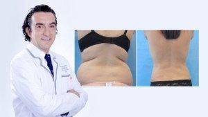 Todo lo que debes saber sobre la Liposucción