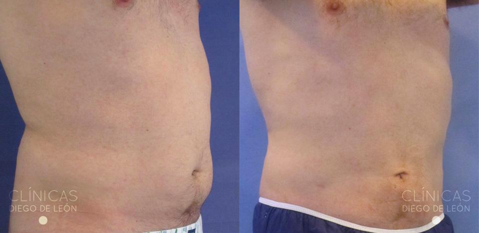 Antes y después liposución