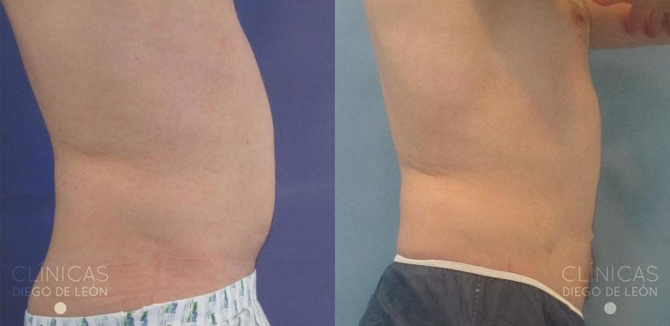 Liposucción de abdomen antes y después