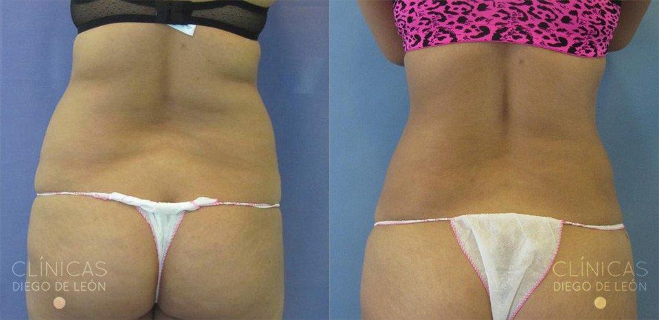 Liposucción de flancos antes y después