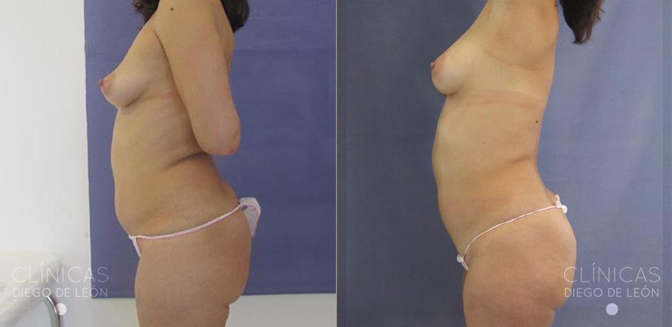 Lipotransferencia a pechos antes y después