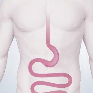 Reducción de estómago con Manga gástrica