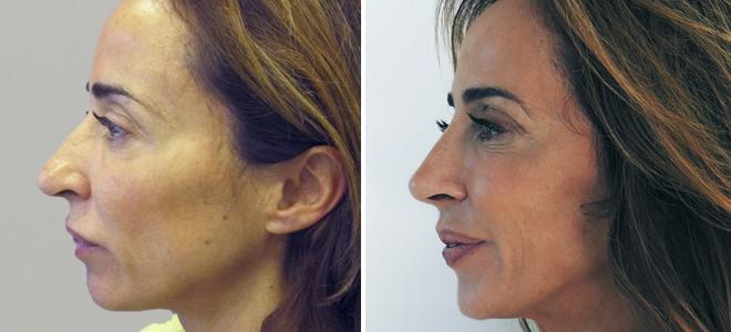 como afinar la punta dela nariz sin cirugia