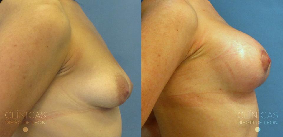Mastopexia con implantes | Clínicas Diego de León