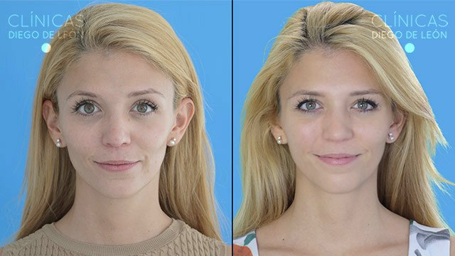 Mesoterapia Facial antes y después