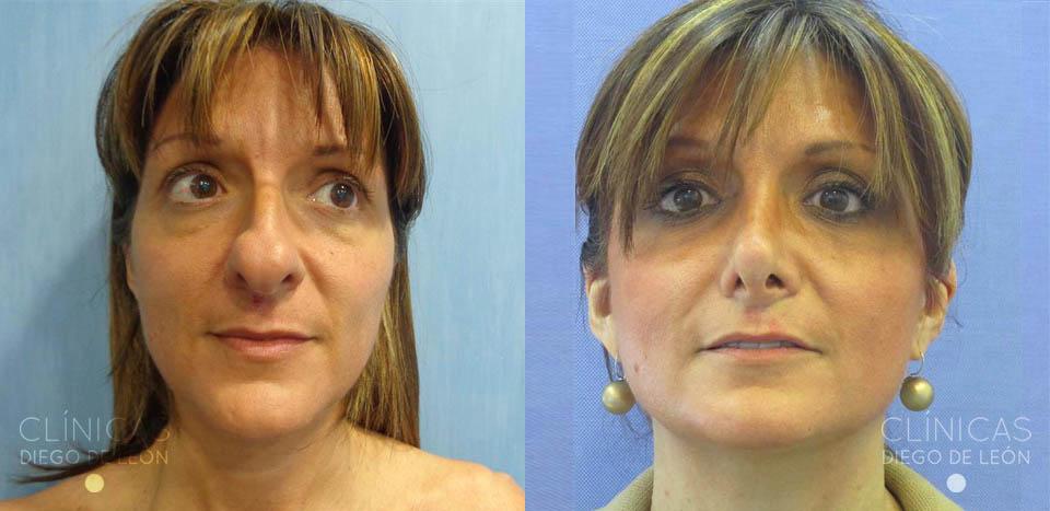 Operación de nariz antes y después