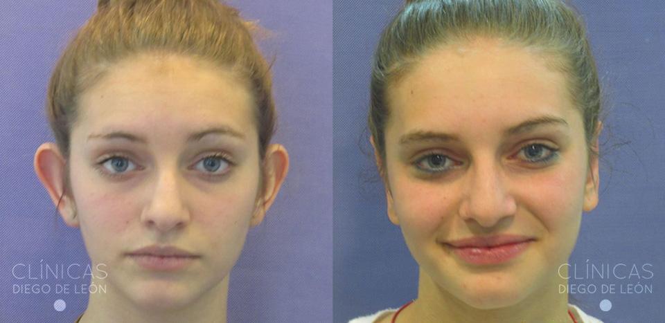 Cirugía de orejas antes y después