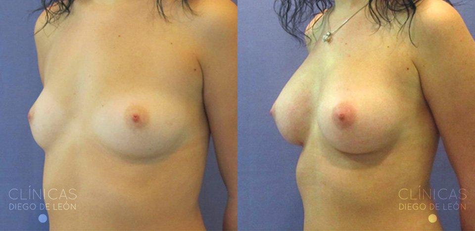 Mamoplastia antes y después
