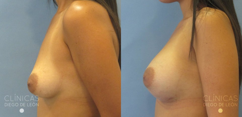 Perfil de mamas tuberosas