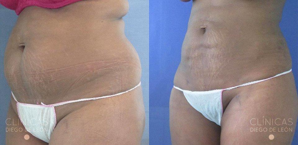 resultados de lipoescultur