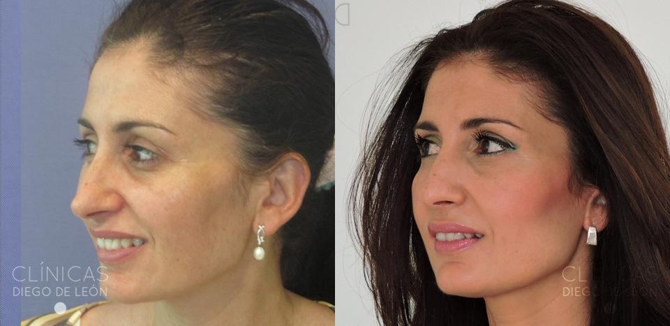 resultados bótox facial