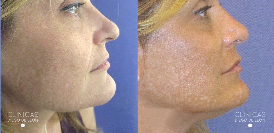 Resultados rellenos faciales | Clínicas Diego de León