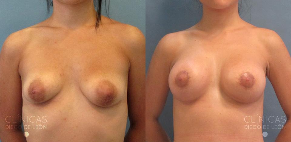 Mastopexia con aumento de pecho y reducción de areola