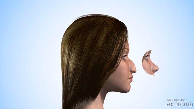 Cirugía estética de nariz