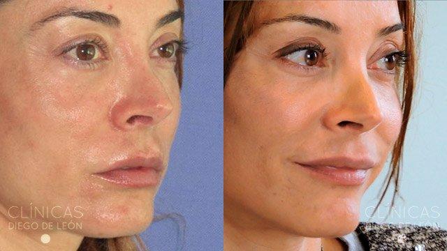 Thermage facial sin cirugía