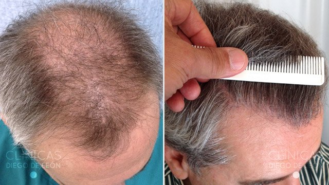 Trasplante de pelo alopecia
